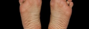 Flat Feet and Lower Back Pain? How to Fix Flat Feet