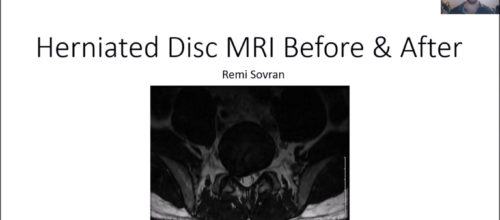 Herniated Disc MRI Before & After Results